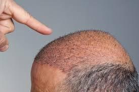 تكلفة زراعة الشعر في دبي