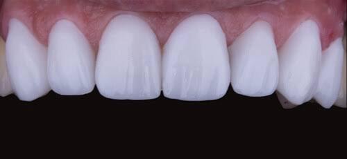 عيادات اسنان في دبي