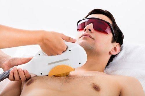 إزالة الشعر باستخدام الليزر
