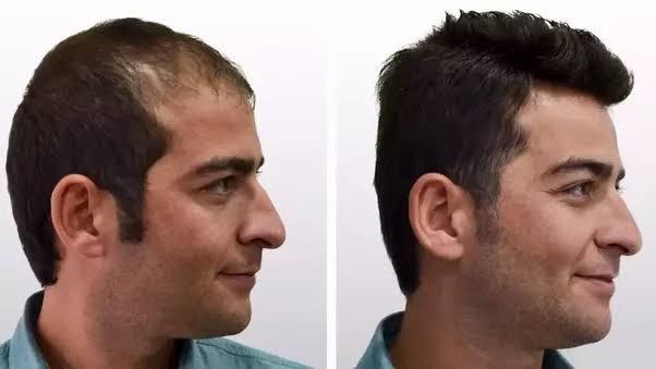 مراكز زراعة الشعر في دبي