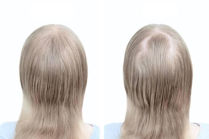 مراكز زراعة الشعر للنساء في دبي