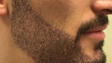 عيادات زراعة شعر اللحية في دبي